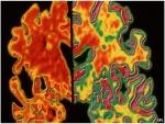 تطوير اختبار للدم يساعد في التنبؤ بالزهايمر