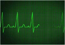 عدم انتظام ضربات القلب قد يكون سبباً في السقوط أرضاً