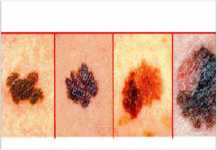 """فيتامين """"بي3"""" يقي من سرطان الجلد"""