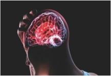 تجربة تبعث أملاً لعلاج أورام المخ
