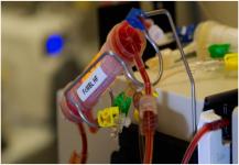 جهاز جديد ينقذ الملايين من ضحايا التسمم الدموي