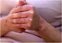 محاولات جديدة لعلاج الأكزيما