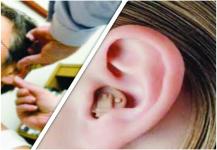 سماعات ضعف السمع تنقذ كبار السن من التدهور الإدراكي