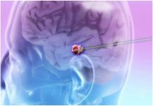 علاج سرطان المخ بالليزر قد تكون له ميزات أخرى
