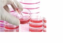 الخلايا الجذعية تظهر نتائج مبشرة في علاج الإكزيما