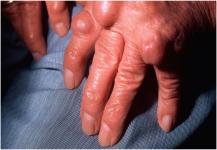 علاج لالتهاب المفاصل الروماتويدي بالخلايا الجذعية