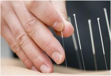 هل يعالج الوخز الكهربائي بالإبر حالات الإمساك؟