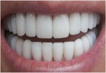 هل يمكن إعادة نمو أسنان جديدة؟