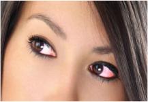 من أسباب احمرار العينين