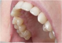 أعراض تنذر بسرطان الفم