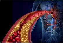 تجارب واعدة للقاح جديد لخفض كوليسترول الدم