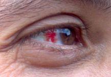 هل تعاني من هذه الأعراض الشائعة لمشاكل العين؟