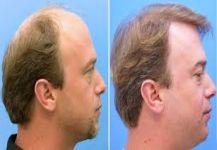 زراعة الشعر بسرعة فائقة