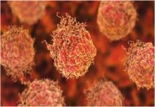 تطوير أسلوب جديد لتشخيص وعلاج سرطان البروستاتا