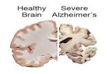 الأرق قد يسبب تآكل الدماغ والزهايمر