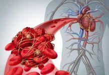 أعراض للجلطات الدموية.. احذر منها