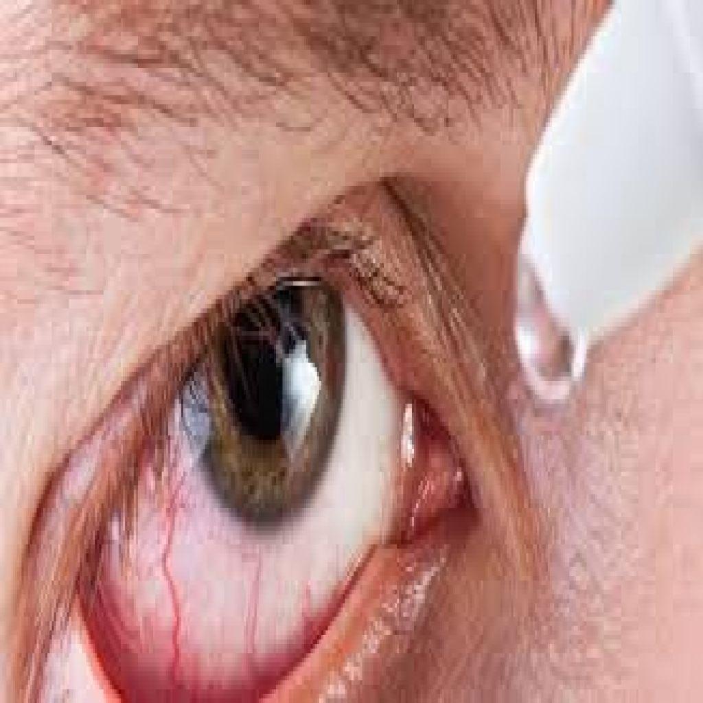 مشاكل شائعة للعين وكيفية التخلص منها؟