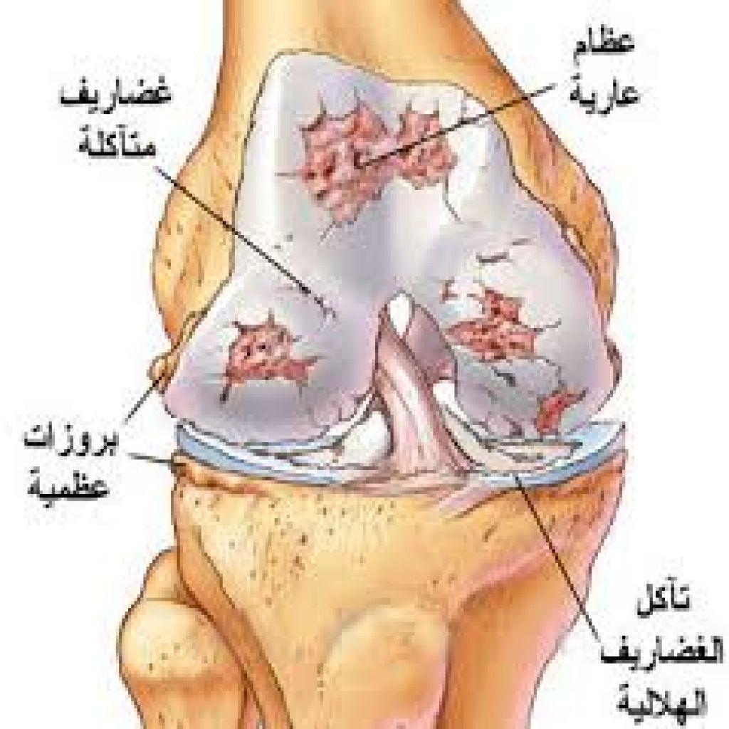 """""""خشونة الركبة"""".. علاج طبيعي أم تدخل جراحي؟"""