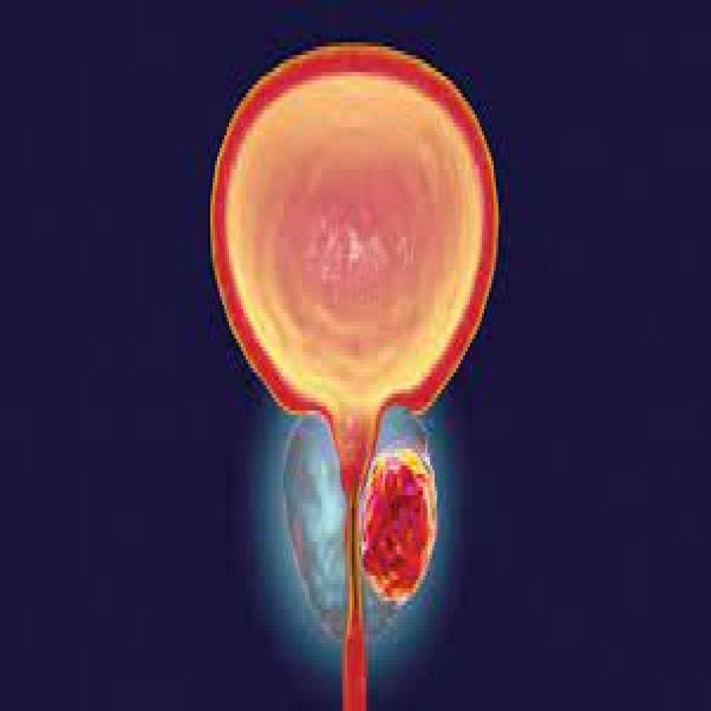 طرق جديدة لاختبار سرطان البروستاتا