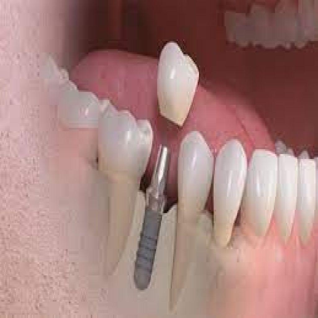 تطورات كبرى في زراعة الأسنان